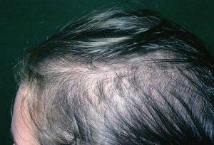 Greffe de cheveux klinika